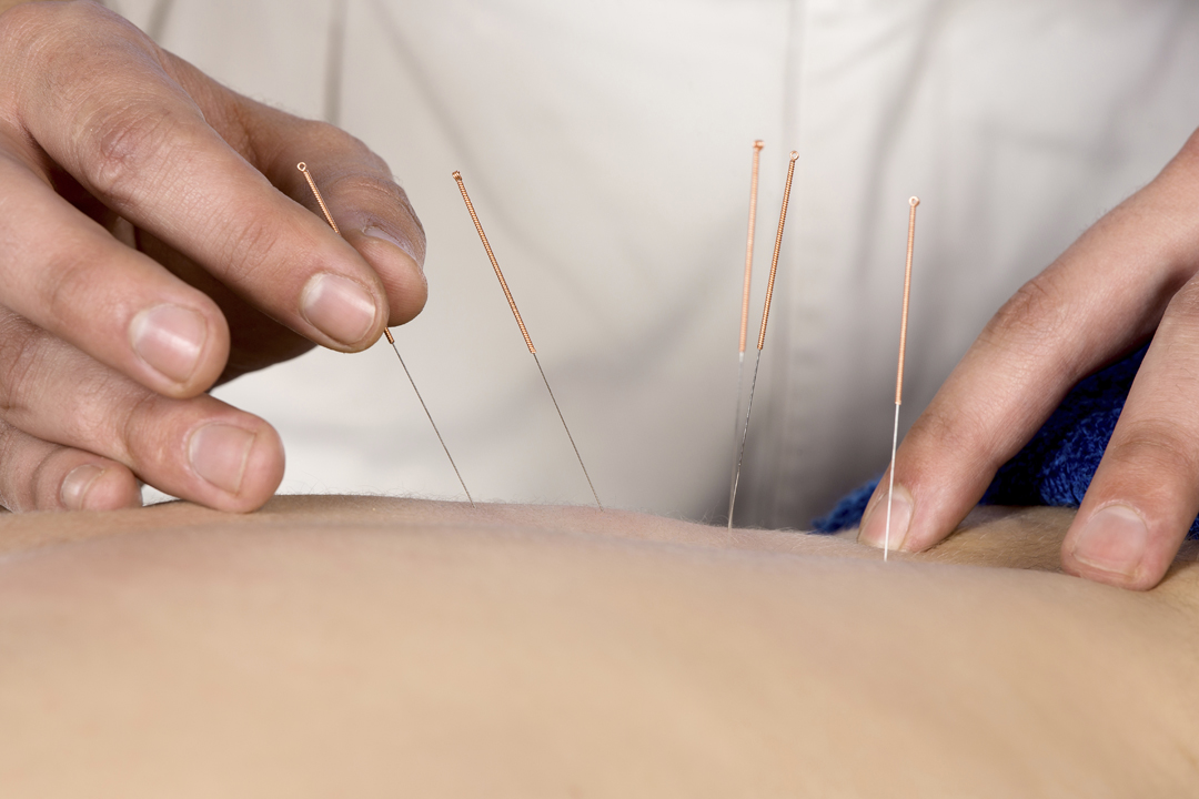 Skilled hands carefully place the acupuncture needles into a patient's back.